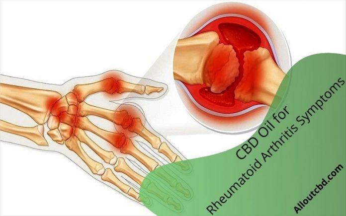 CBD Oil for Rheumatoid Arthritis Symptoms